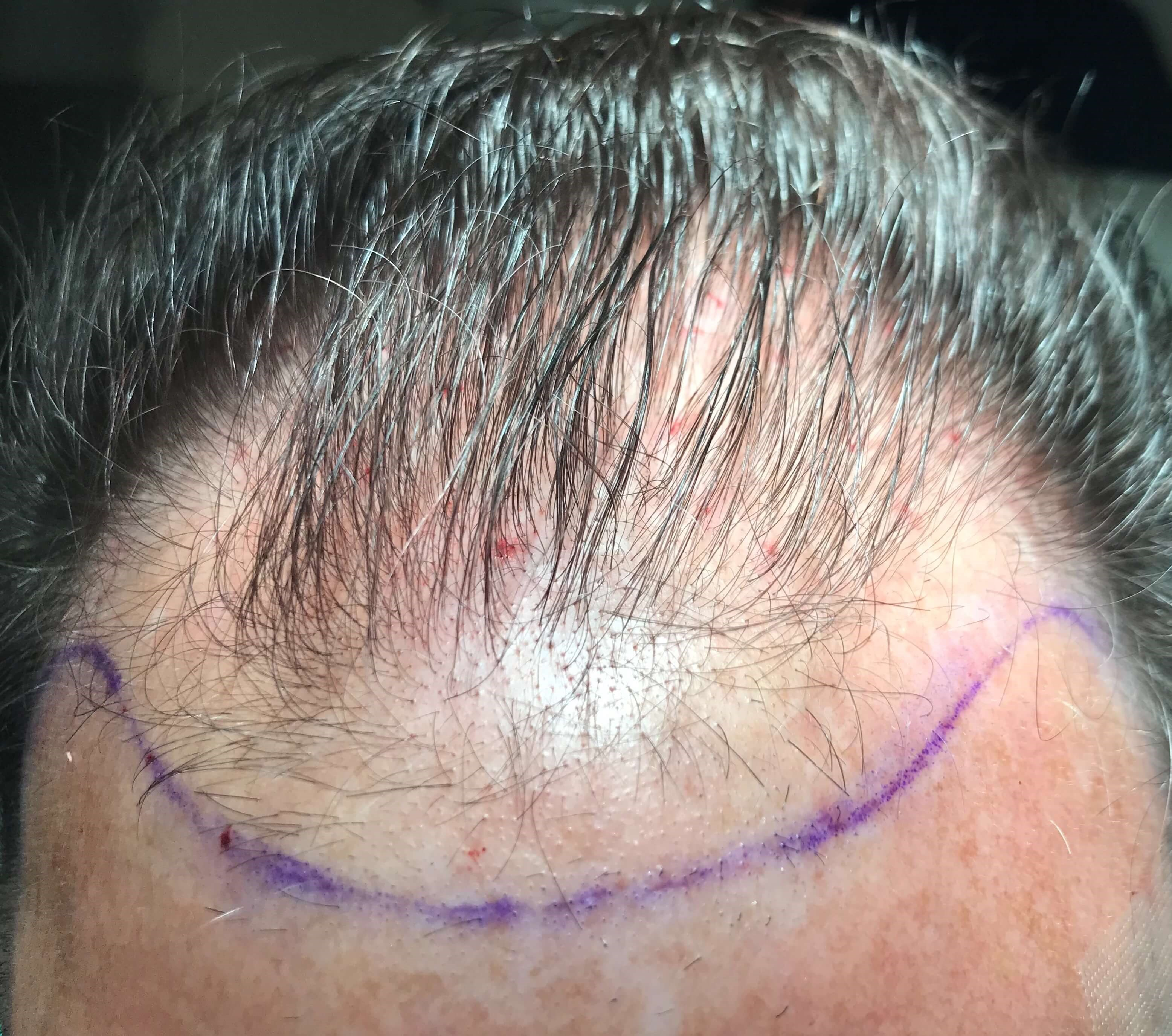 SmartGraft Hair Restoration Before