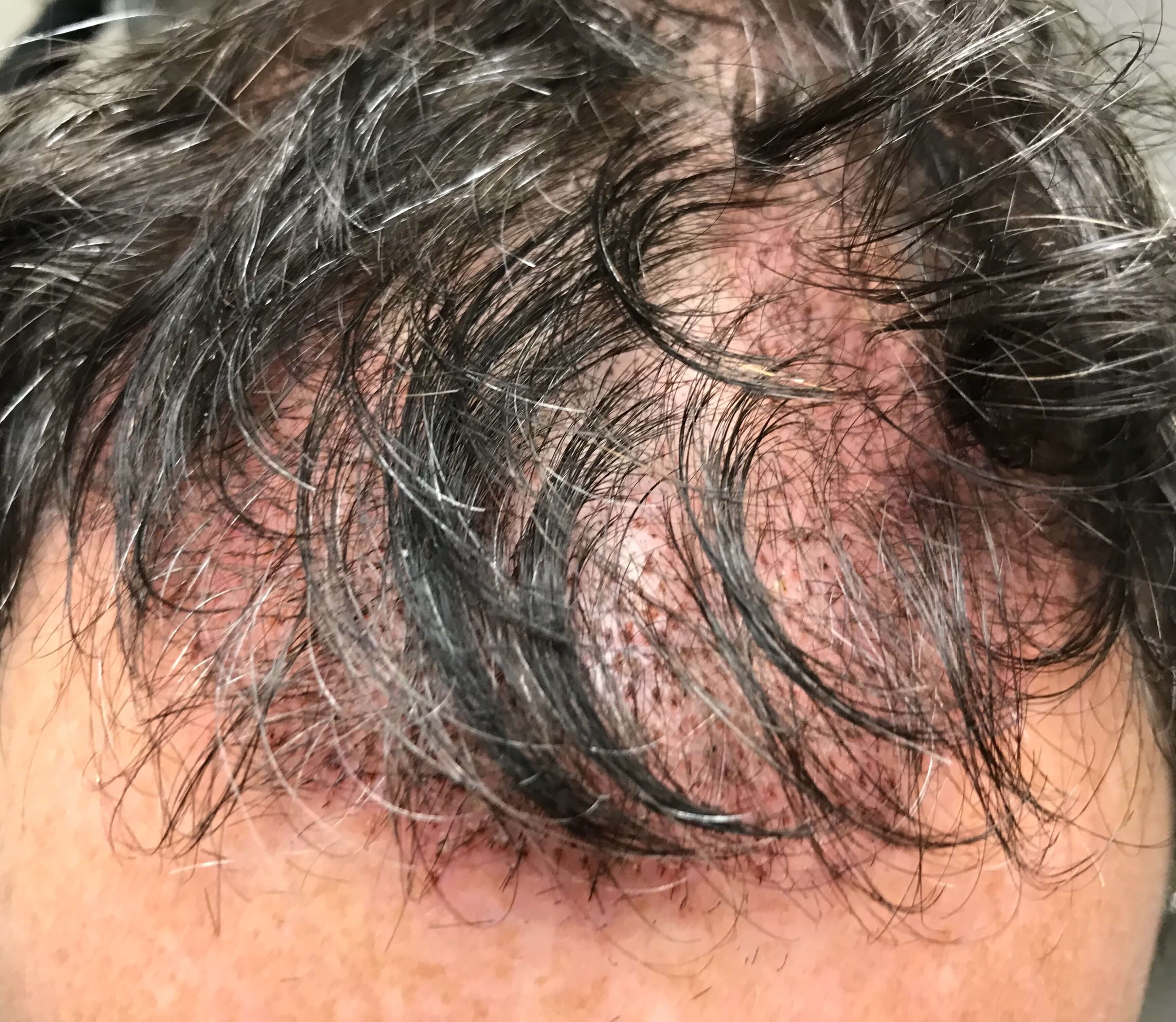 SmartGraft Hair Restoration 3 days After