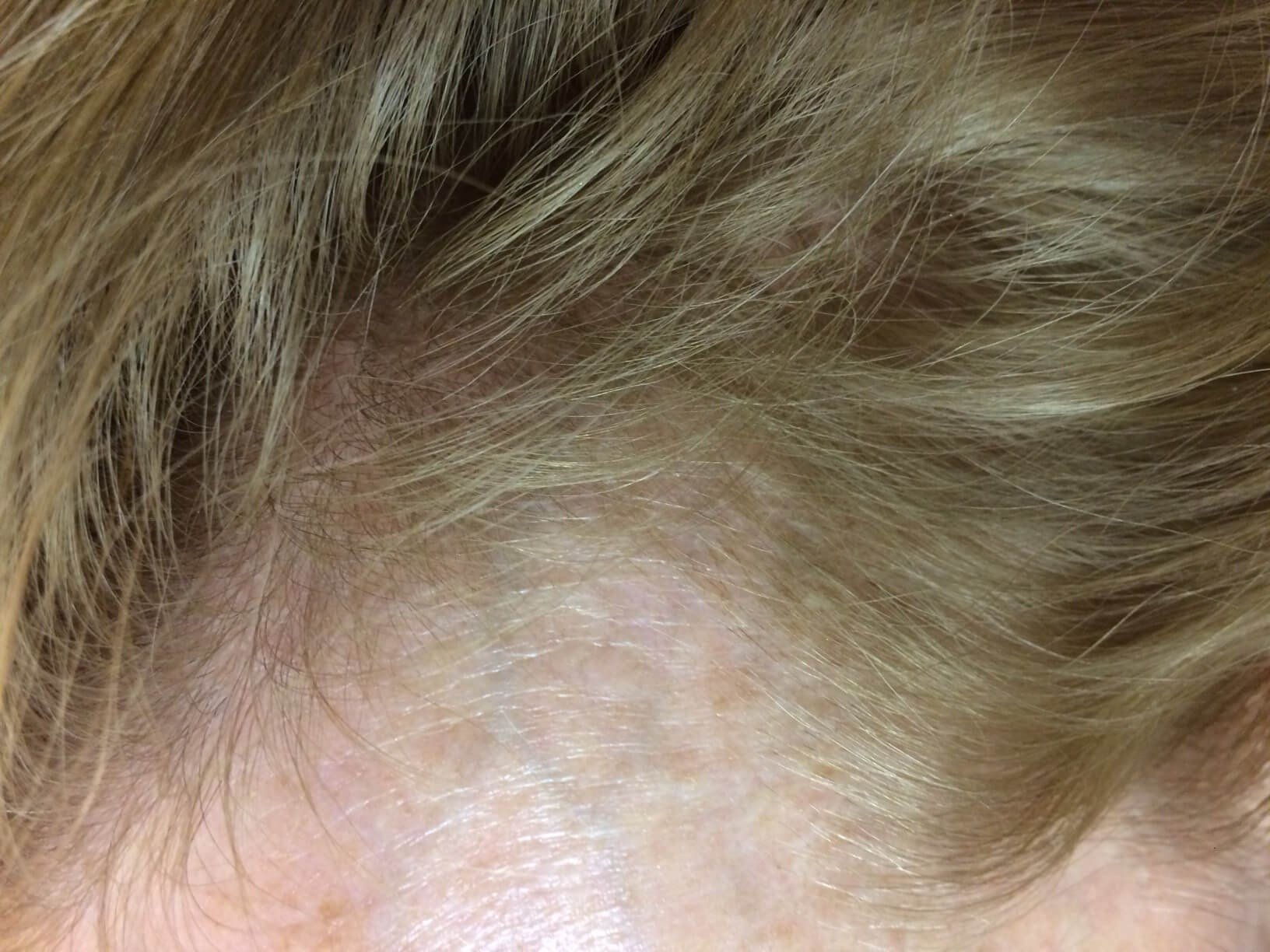 Hair Restoration for Women After 4 Months
