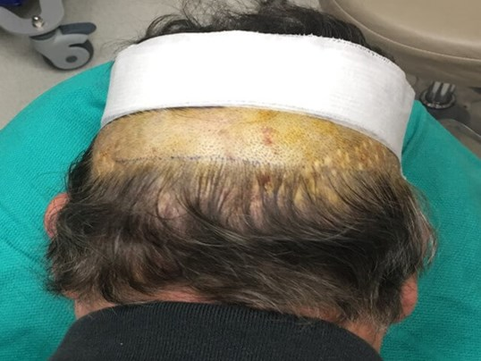Hair Transplant Donor Site Before Harvest