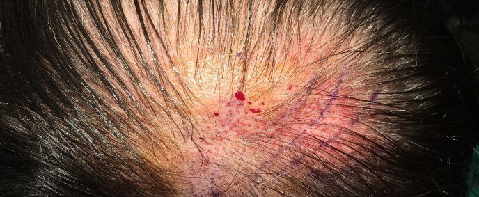 Placement of Hair Follicles After