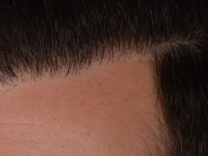 FUE with Smartgraft After