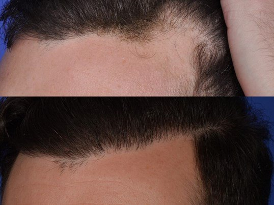 FUE with Smartgraft Before