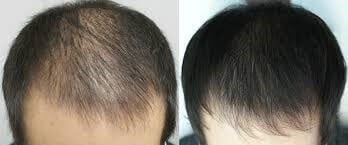 2000 FUE Smartgraft Before
