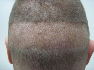 Donor Site For FUE After