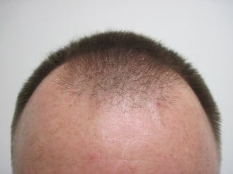 2000 FUE with Smartgraft Before