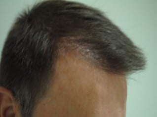 2000 FUE with Smartgraft After