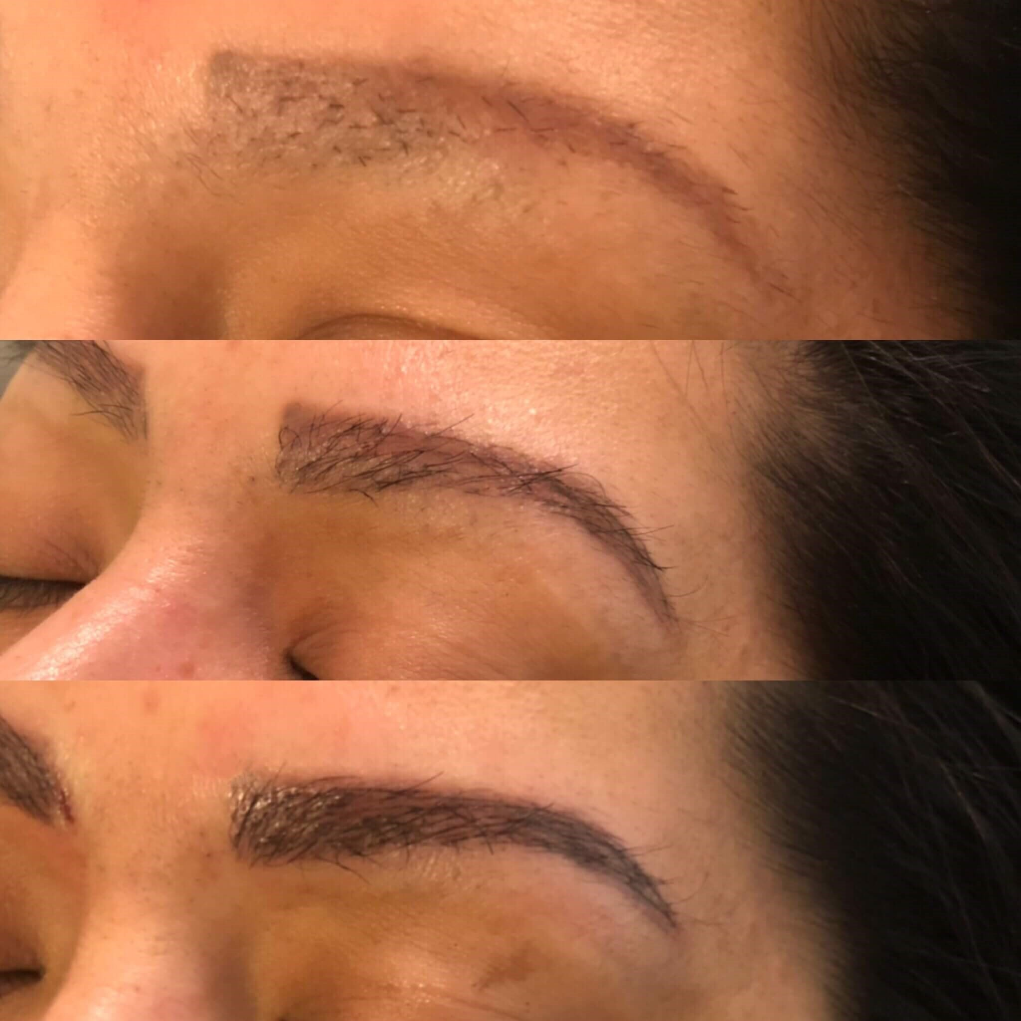 Eyebrow Transplantation Progression