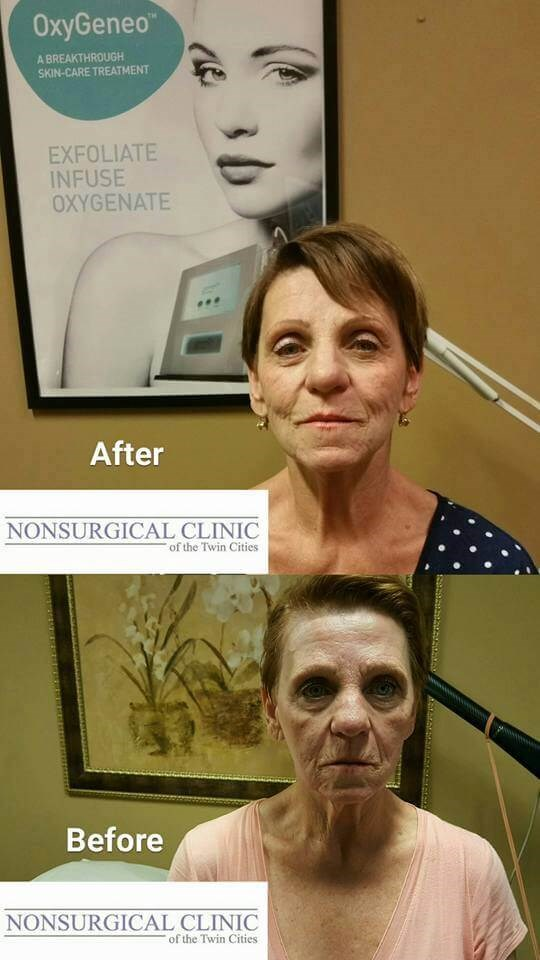 Neuro-Aesthetic Facial Before