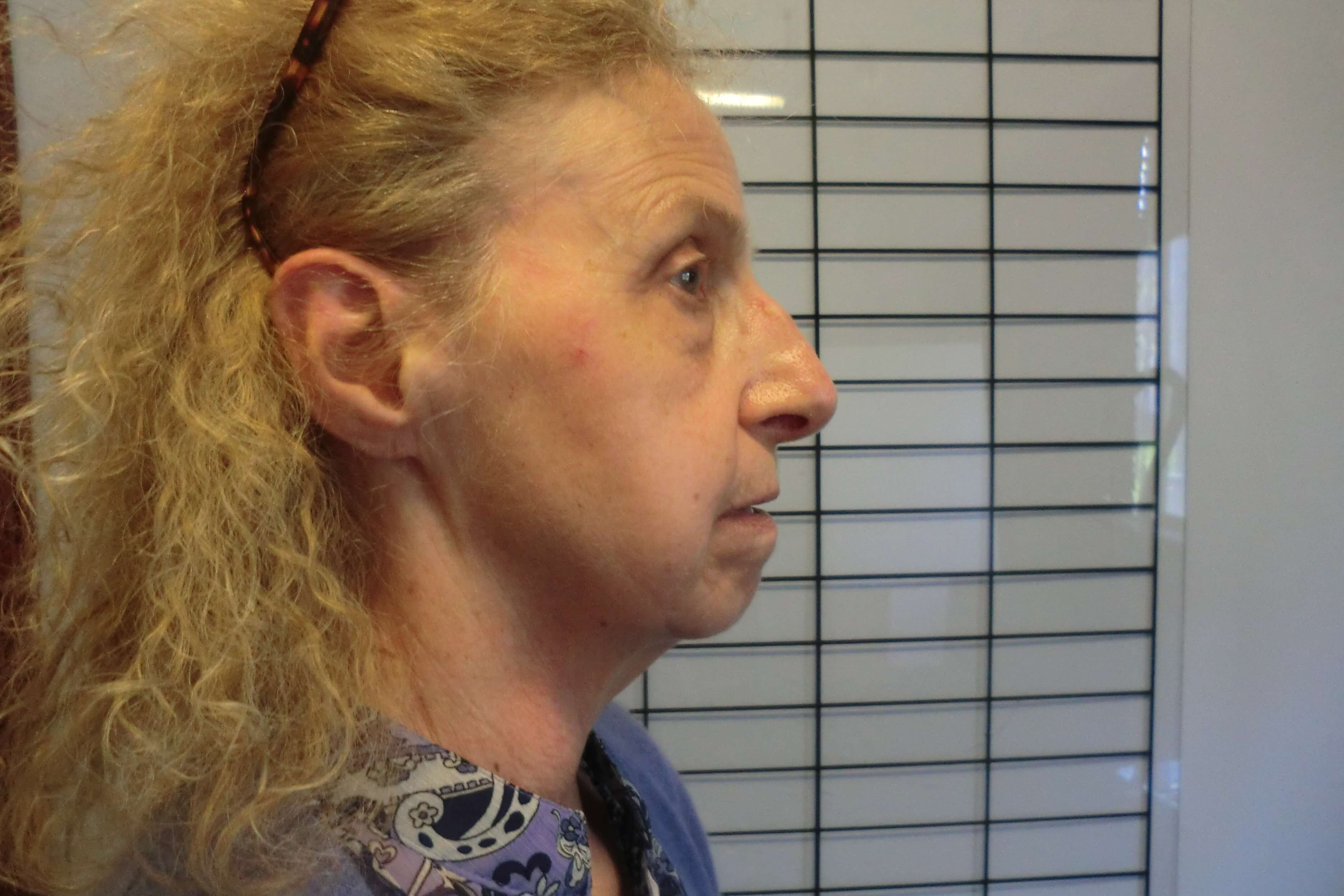 Facial restoration in funerals