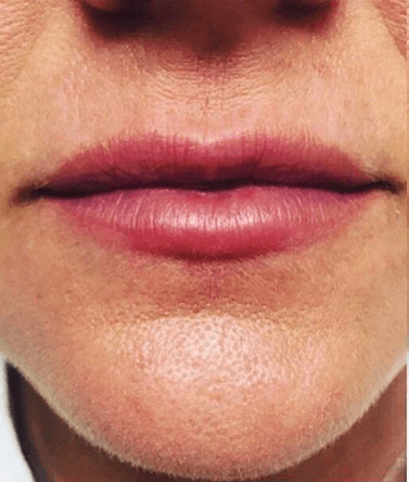 Juvederm Vollure XC Before Juvederm