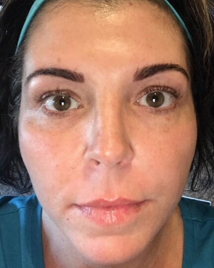 IPL Photofacial After IPL Photofacial