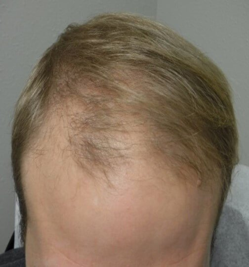 PRP for Alopecia Before PRP