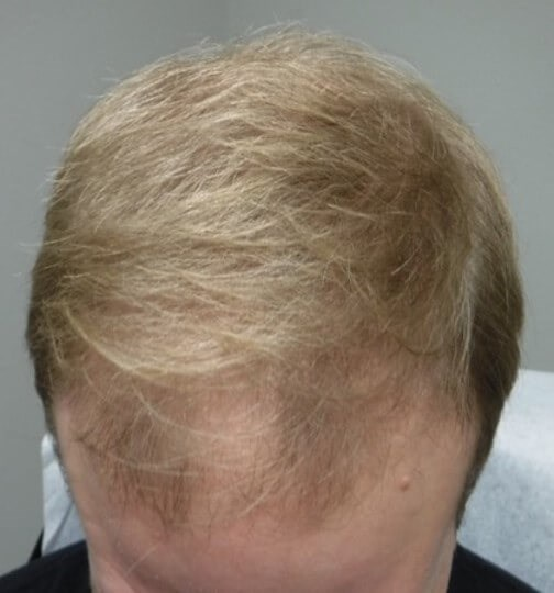 PRP for Alopecia After PRP
