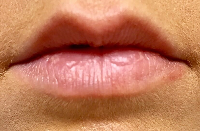 Front View Restylane Defyne Before Restylane