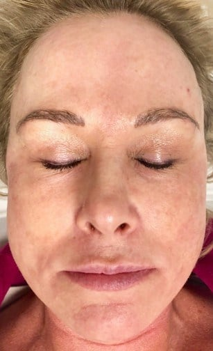 IPL Photofacial After 3 IPL Photofacials
