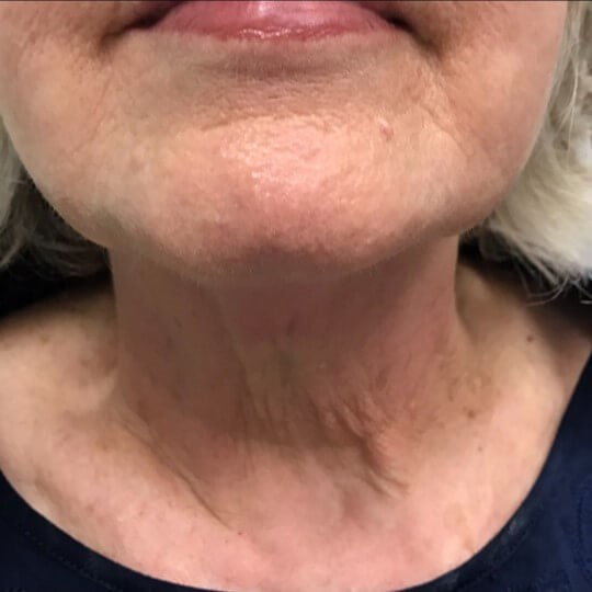 TempSure Envi Skin Tightening After TempSure