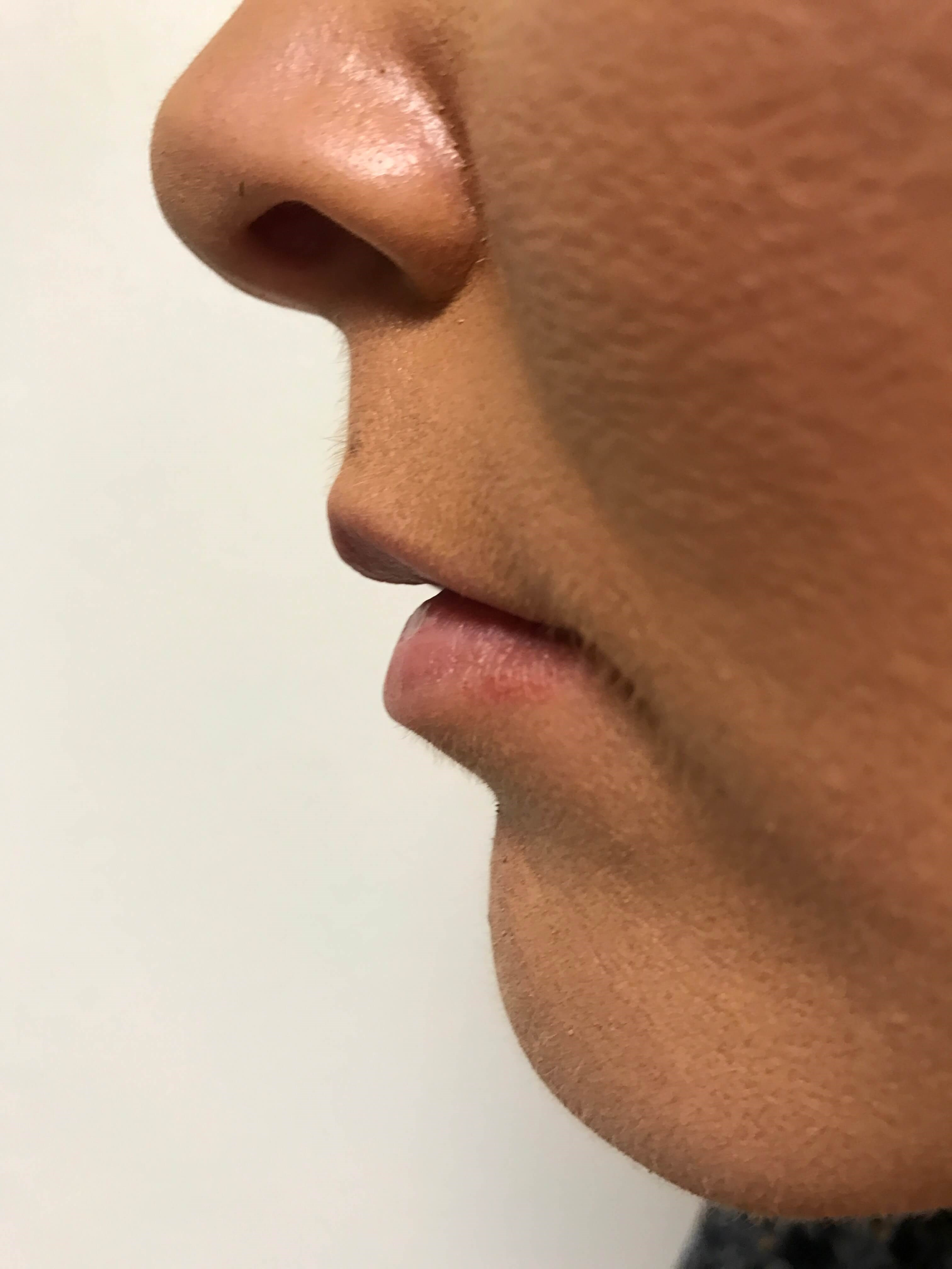 Side View Restylane Defyne Before Restylane