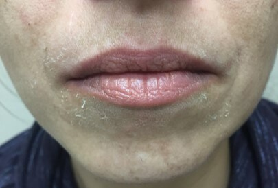 Juvederm Ultra Plus XC Before Juvederm