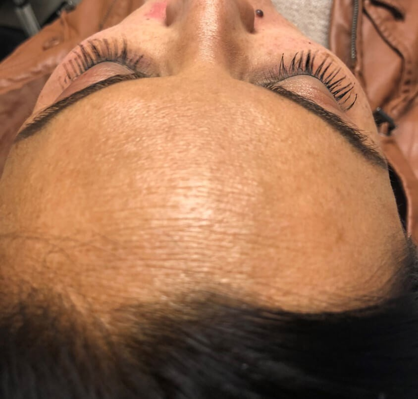 Juvederm Voluma XC Before Juvederm