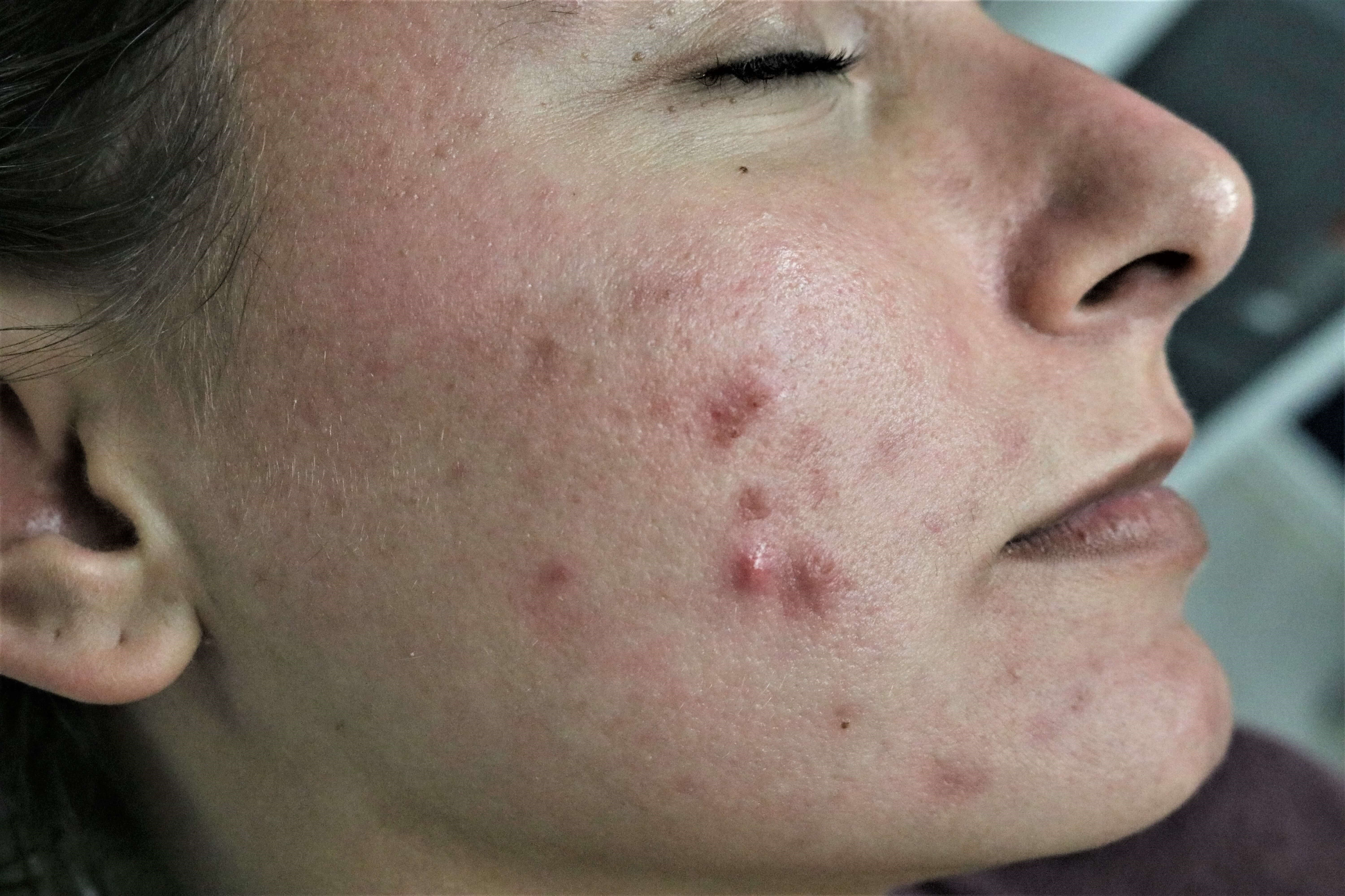 Chemical Peel Before and After Before Chemical Peel