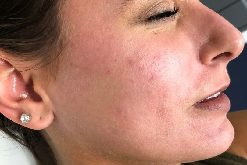 Chemical Peel Before and After After Chemical Peel