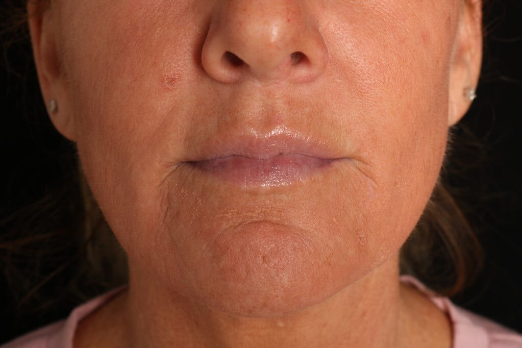 Juvederm Vollure XC Before Juvederm Vollure XC
