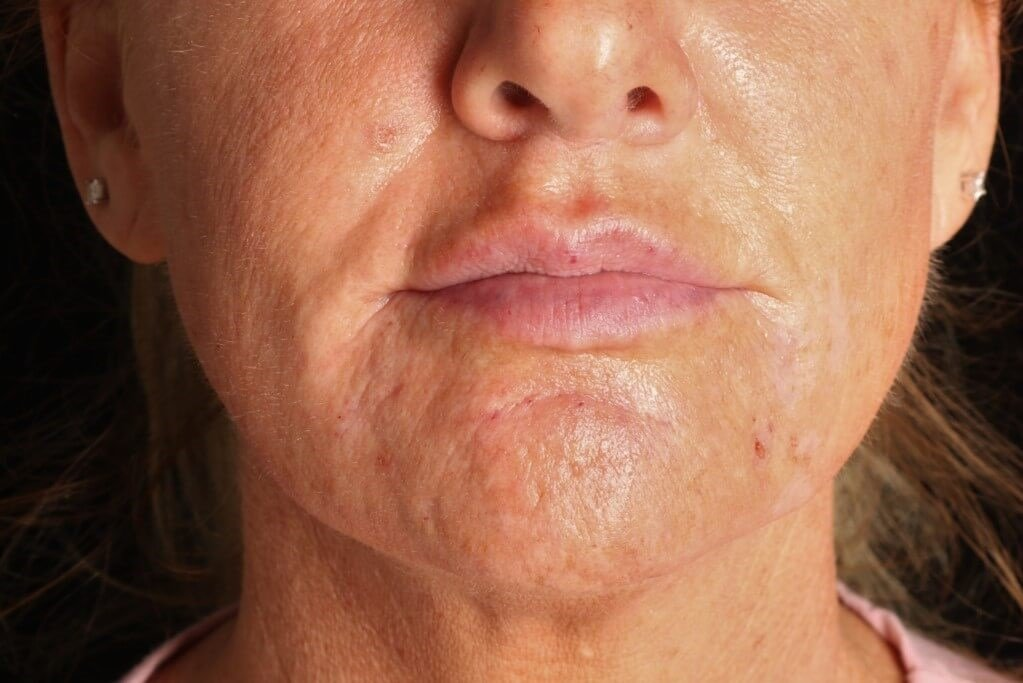 Juvederm Vollure XC After Juvederm Vollure XC