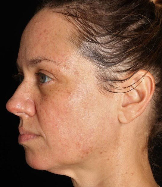 IPL Photofacial for Uneven Pigmentation on Frisco, TX Patient