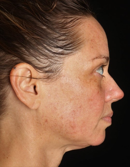 IPL Photofacial Before IPL Photofacial