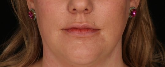 Juvederm Ultra Plus XC After Juvederm