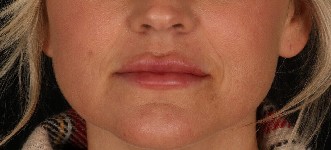 Juvederm Volbella XC After Juvederm