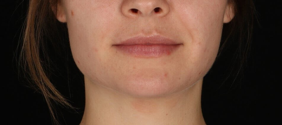 Juvederm Vollure XC After Juvederm