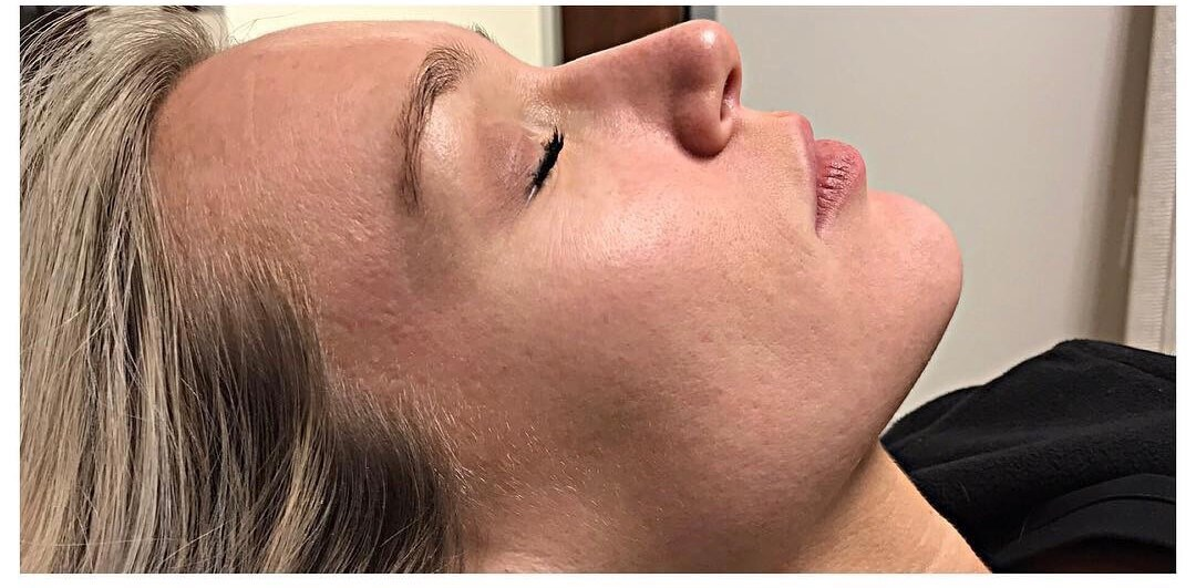 Dermal Infusion Before Dermal Infusion