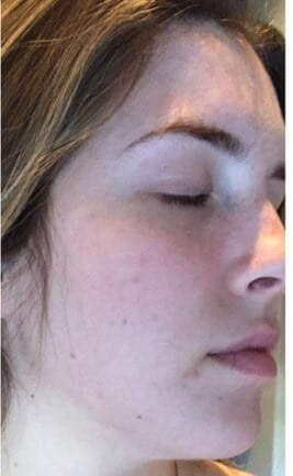 Vitalize Chemical Peel After Vitalize Chemical Peel