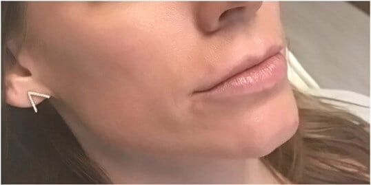 Juvederm Ultra Plus Before Juvederm