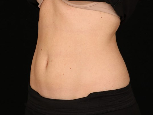 TruSculpt ID After TruSculpt ID