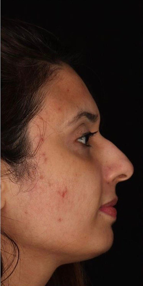 Vitalize Chemical Peel Before