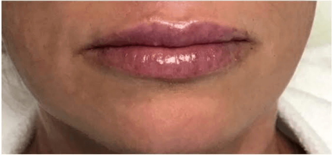Juvederm Ultra Plus After Juvederm