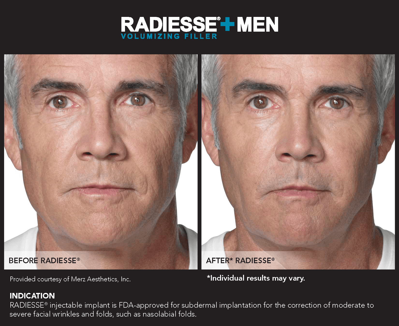 Radiesse® in Frisco, TX