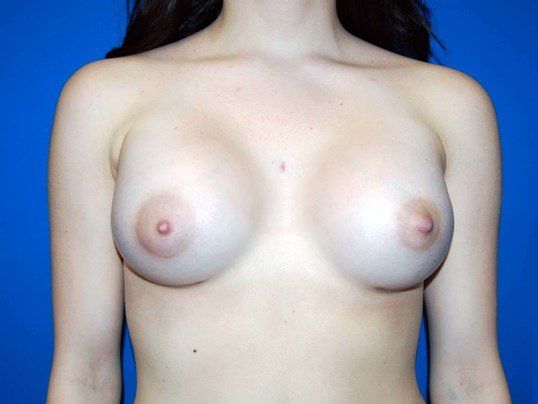 Breast Augmentation Results After 330cc Implants