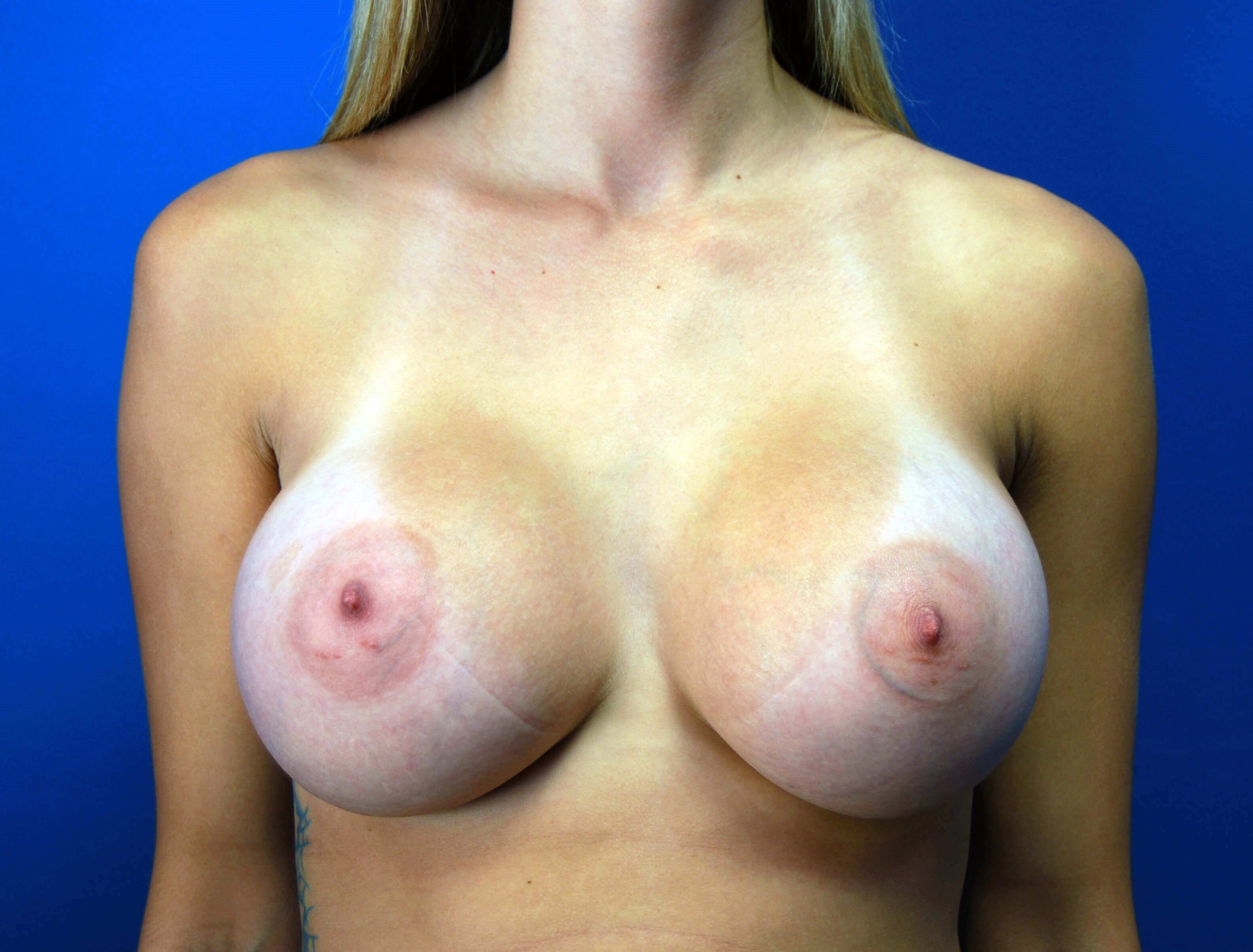 Front View After 375cc Implants