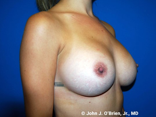 Right Side View After 400cc Implants