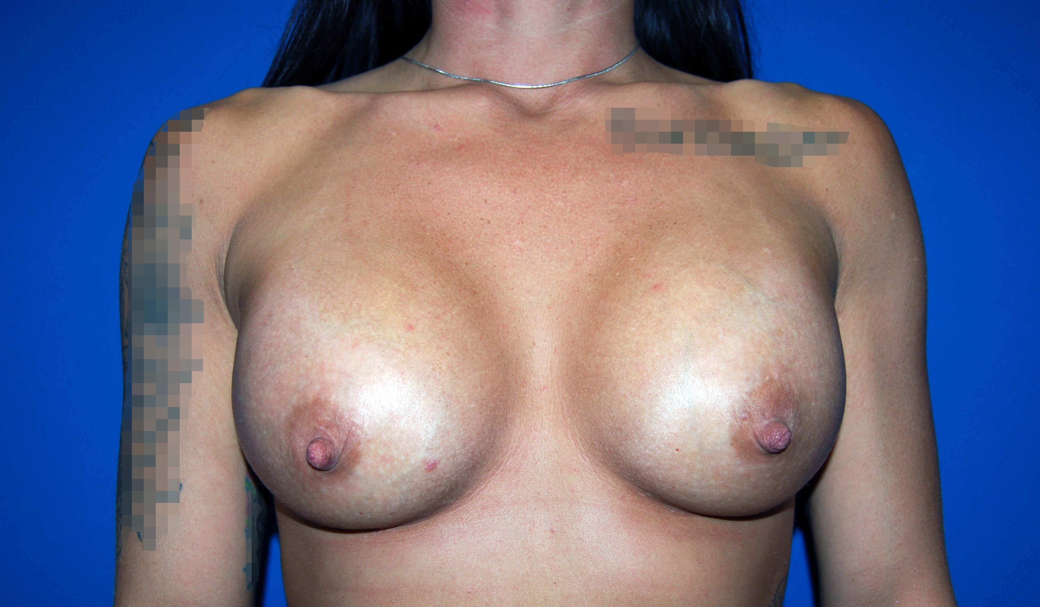 Front View After 355cc Implants