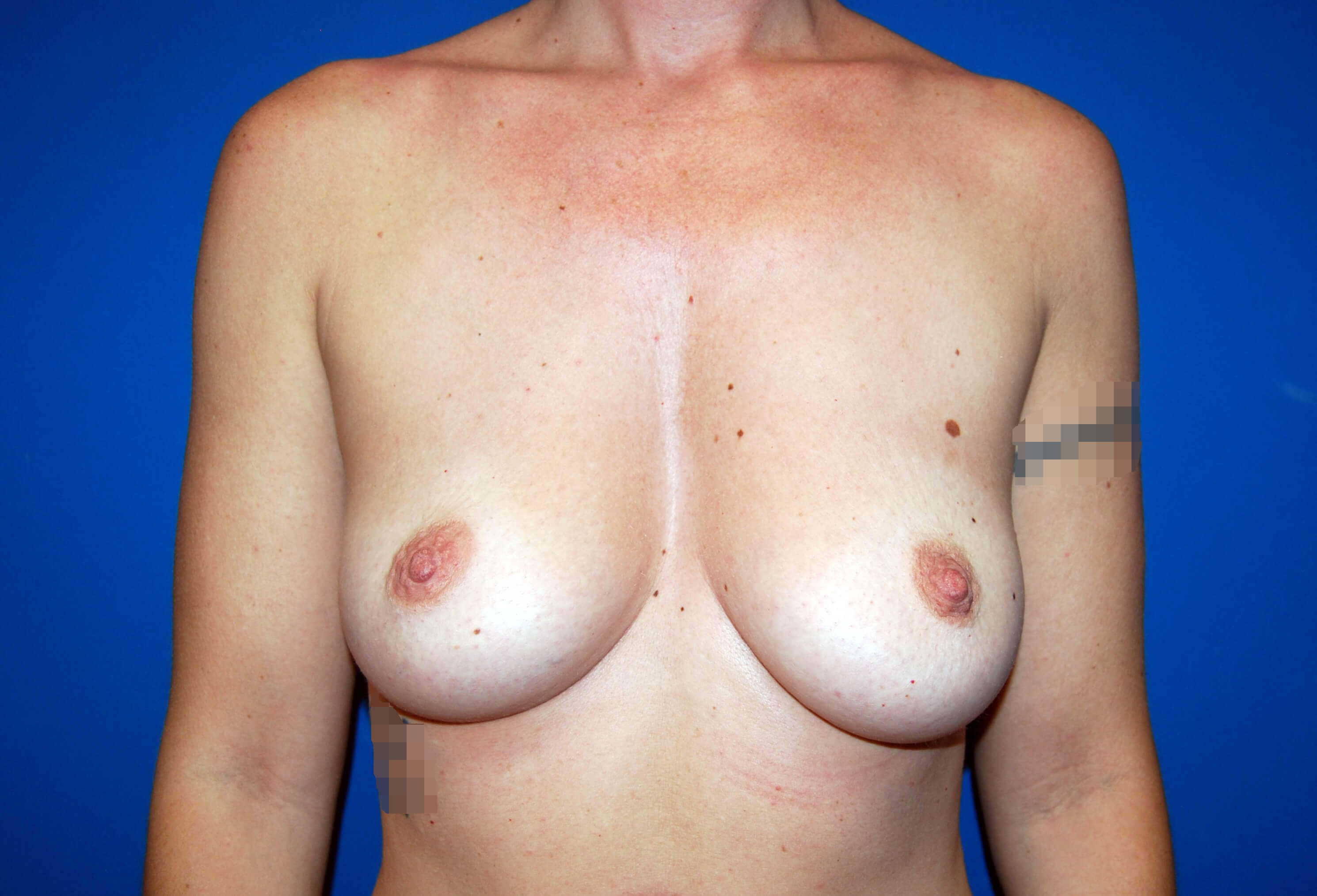 Front View Before Implants