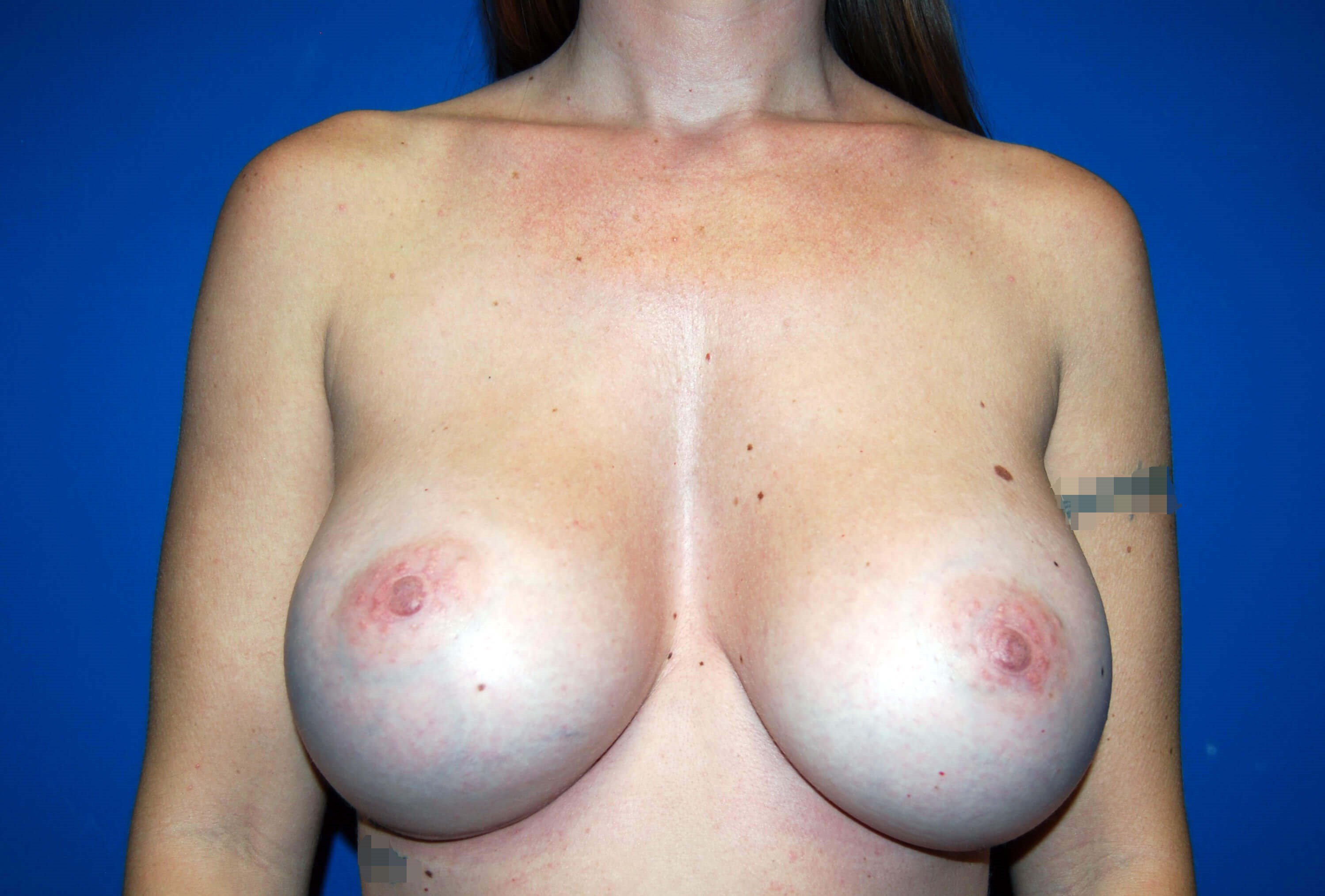 Front View After 500cc Implants