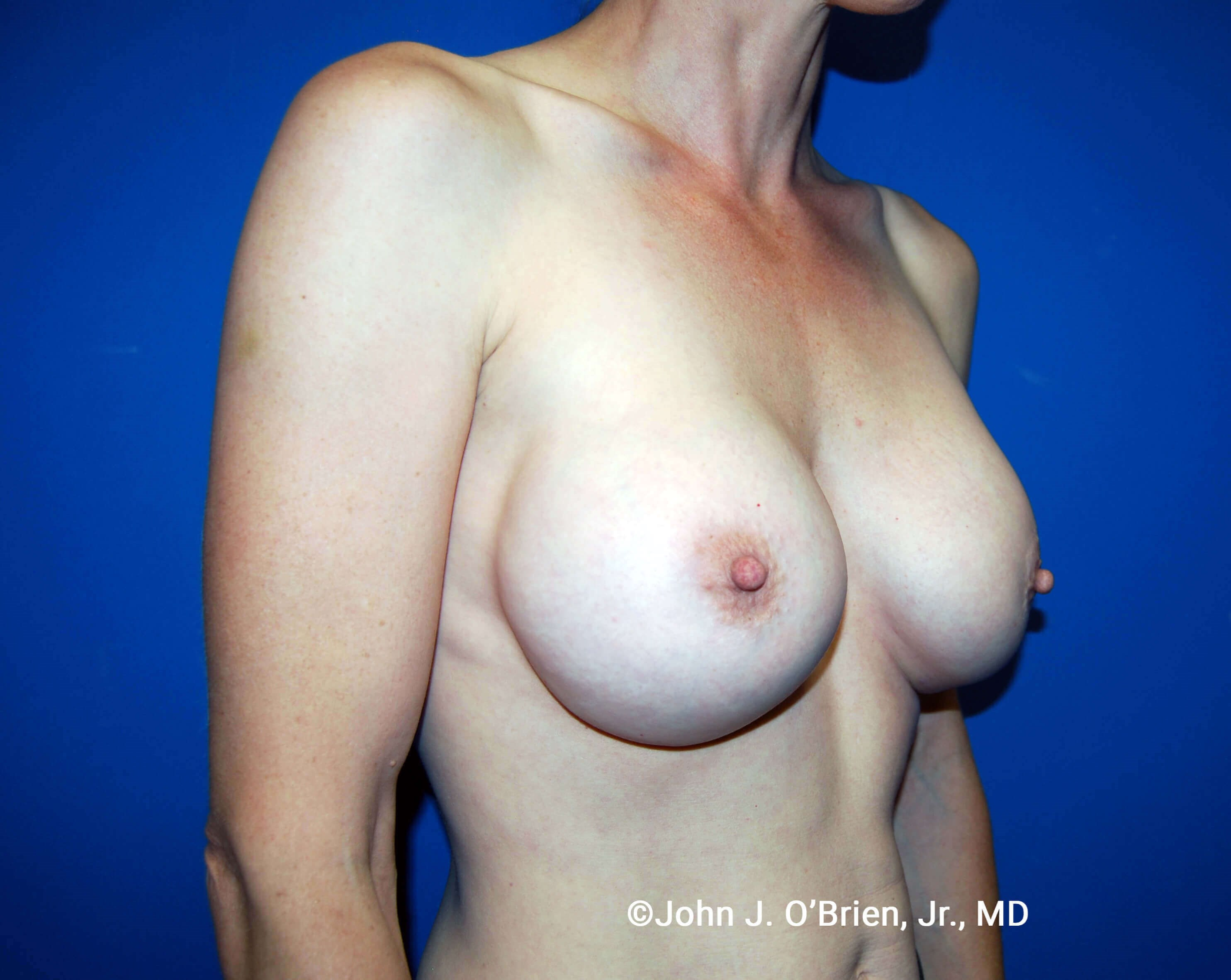 Right Side View After 385cc Implants