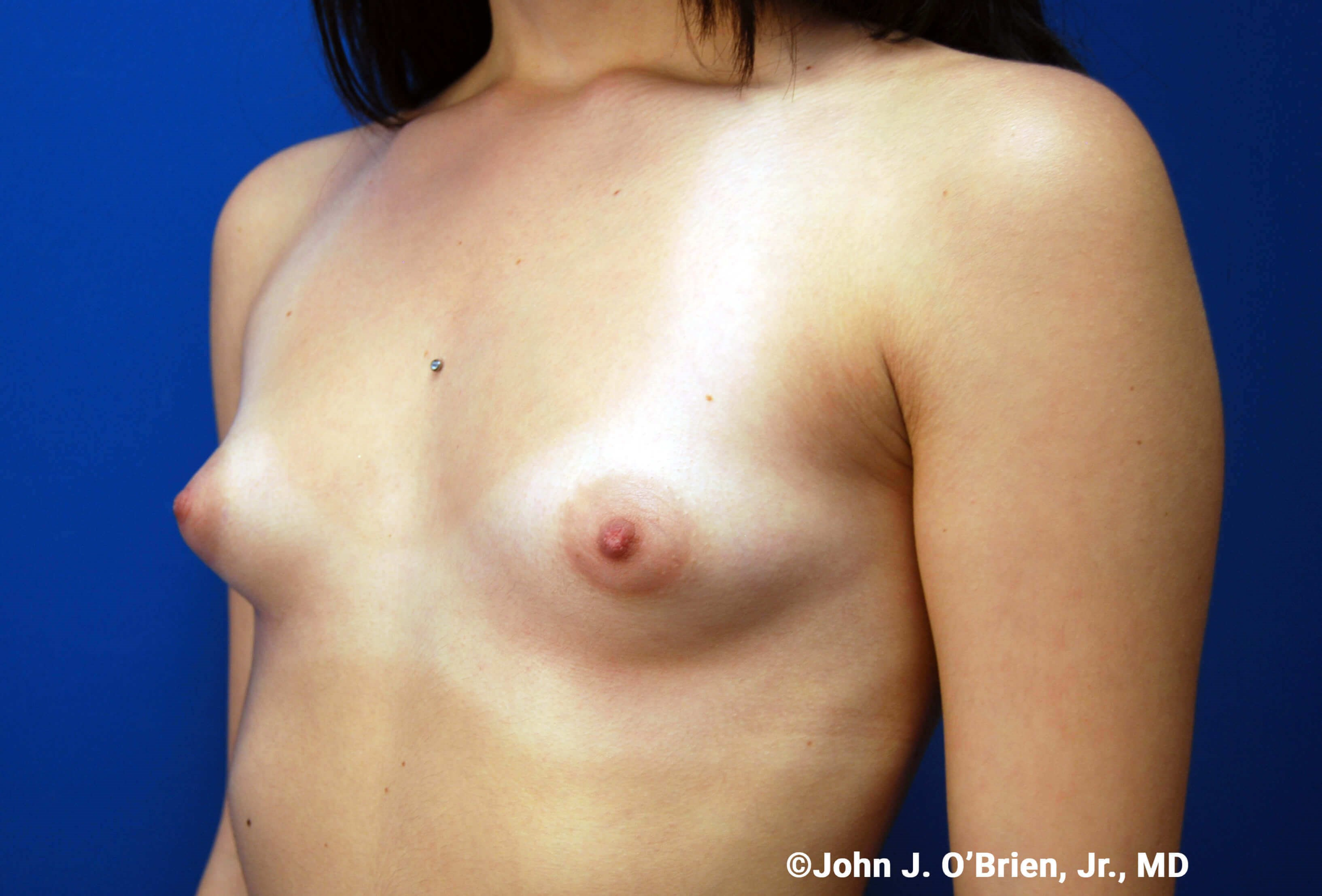 Left Side View Before Implants