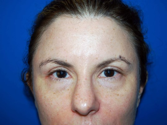 Front View After Upper Eyelid Lift