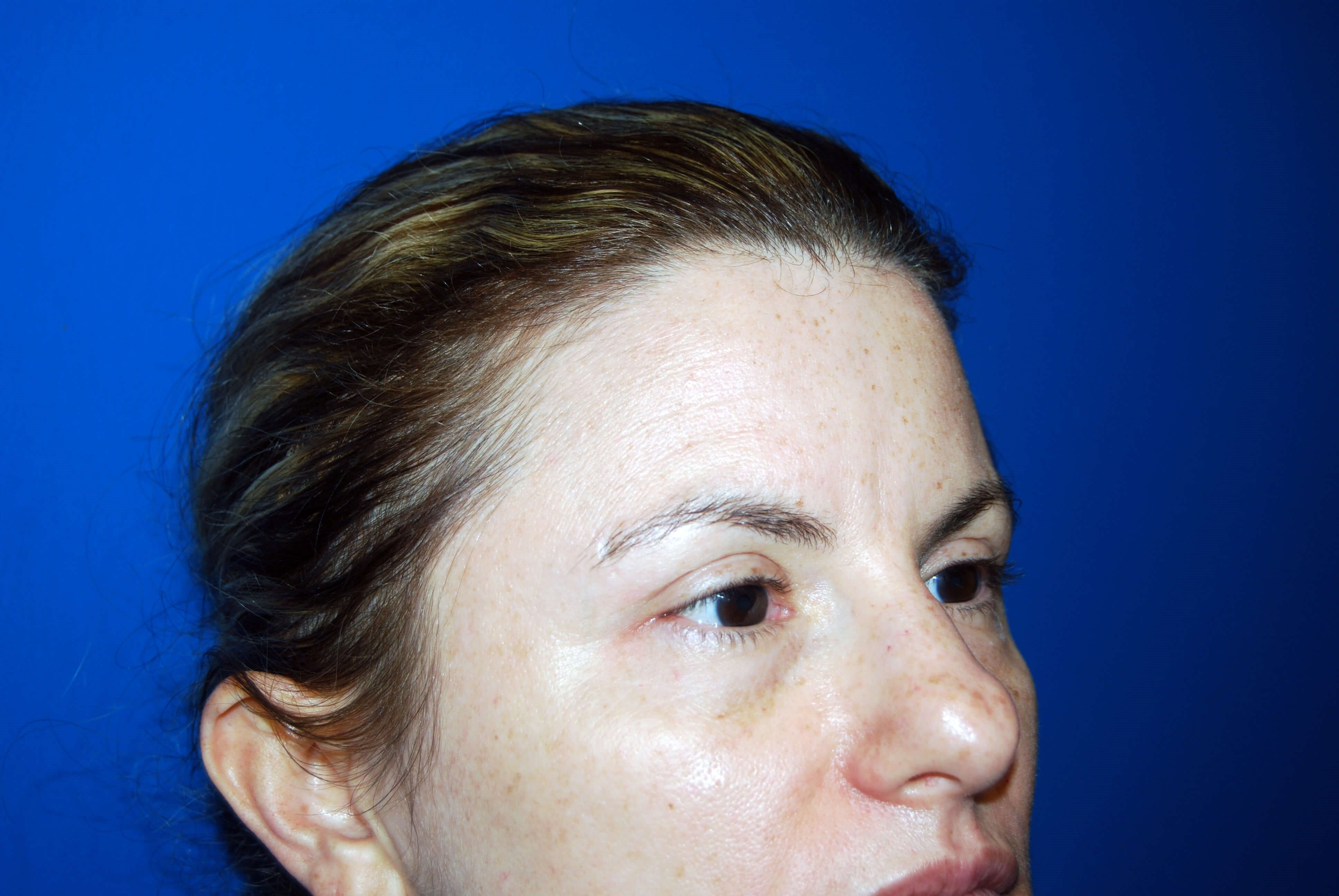 Right Side View After Upper Eyelid Lift